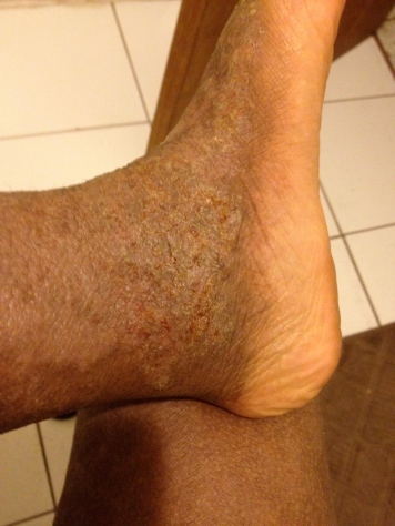 Taken today: Aug 21. Left foot: super thick crust from oozing, and painful to walk on.