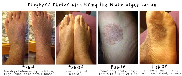 feb 2015 feet collage