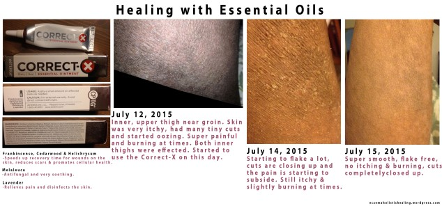 Healing with essential oils - email me for more info about purchasing! eczema.holistic.healing@gmail.com