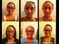 It's so amazing to see the progression of the redness to clearer skin!
