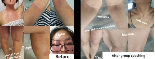 eiline-Before-after-1024x394